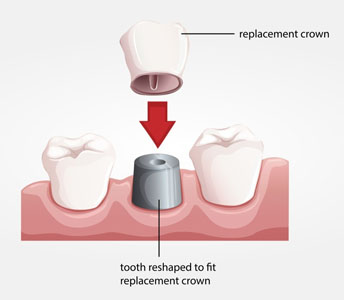 Everything You Need To Know About A Dental Crown