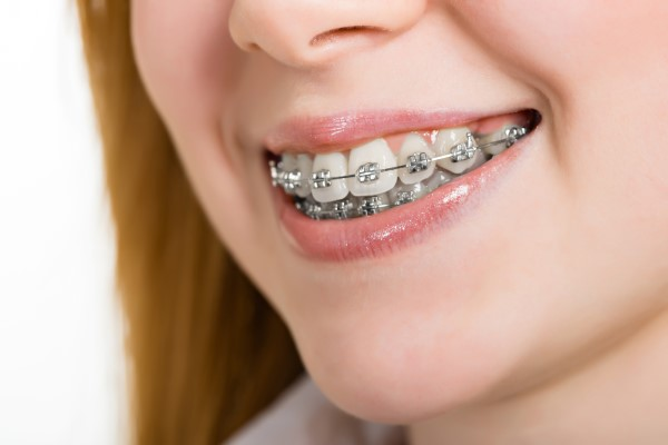 A General Dentist Discusses How To Clean Braces