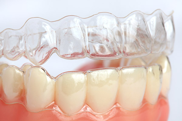 Understanding How Invisalign Works